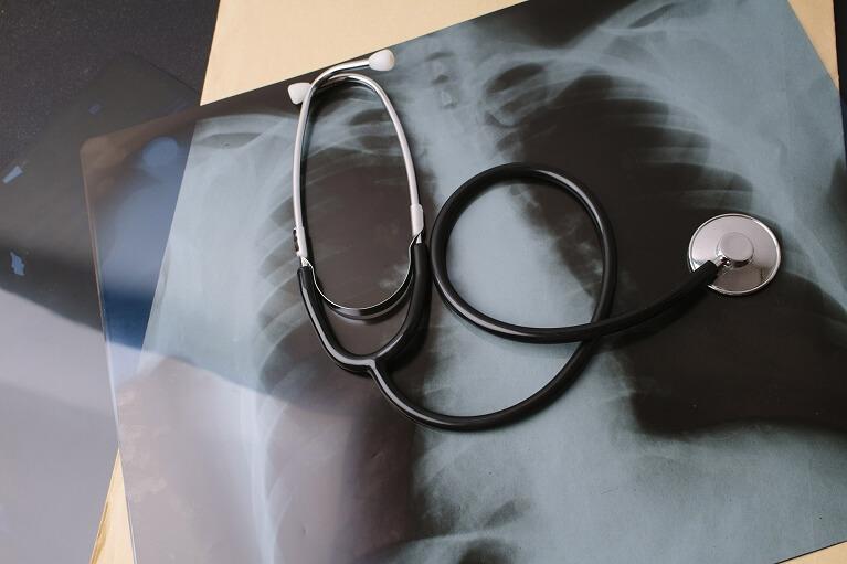 健康診断を受診して胸部の異常を指摘されたら